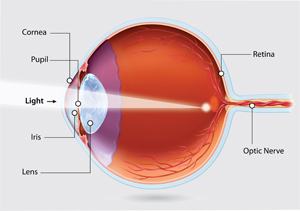 Myopia-illo